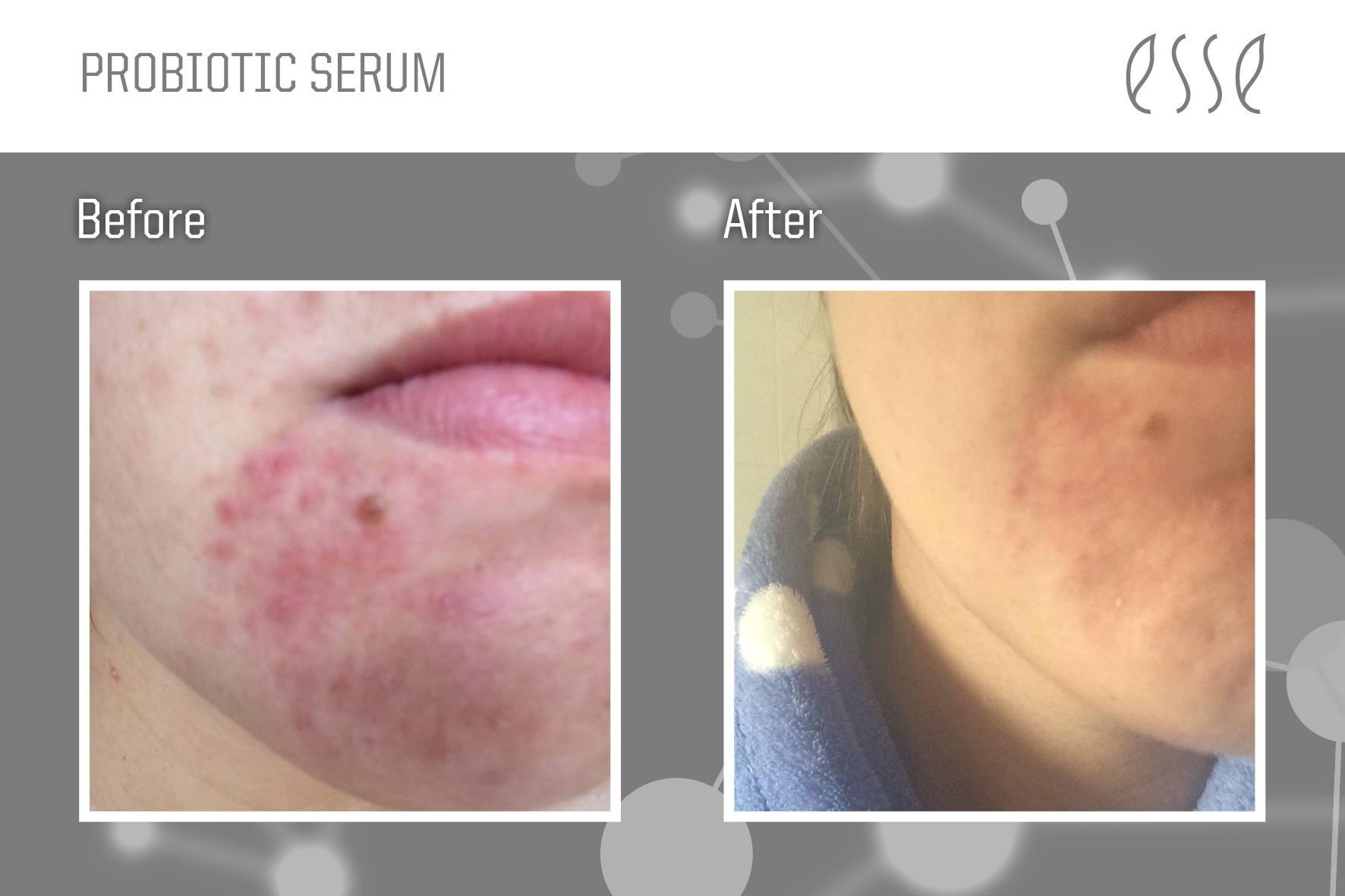 Esse Probiotic Serum_BeforeAfter