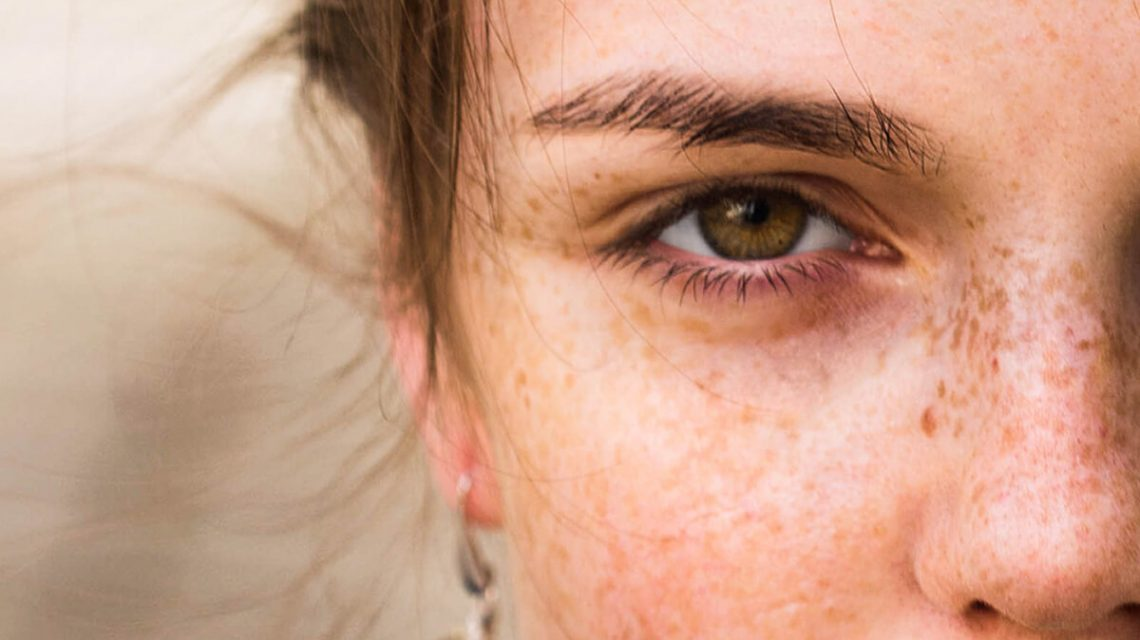 Woman_Freckles